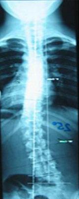Rumpforthesenversorgung Röntgenbild ohne Korsett